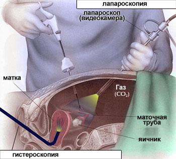 Лапароскопия – это очень распространенная диагностическая процедура