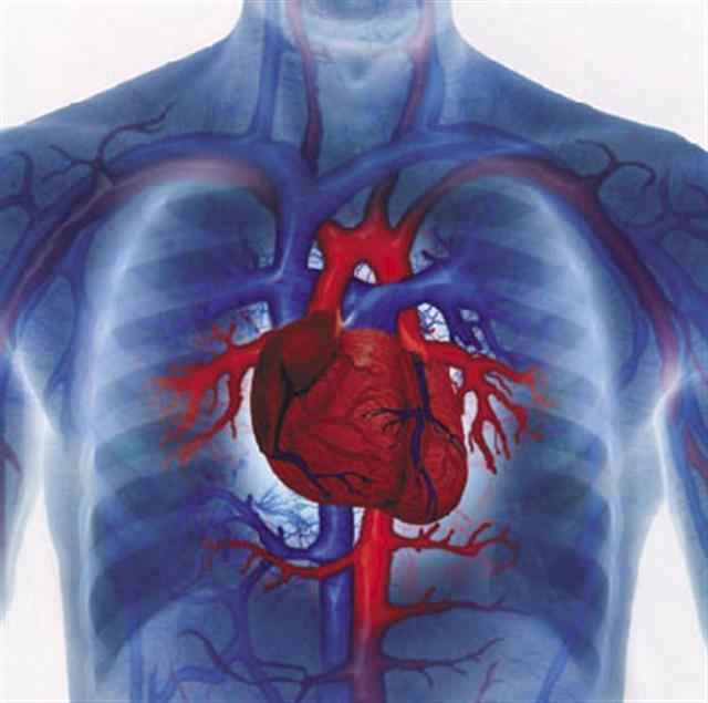 Инфаркт миокарда – от чего происходит, чем лечат, как предупредить