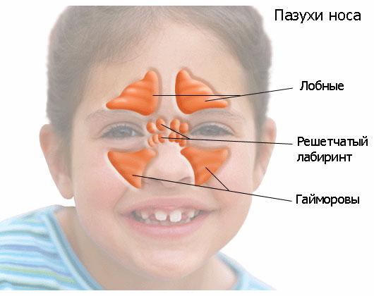 Симптомы и лечение синусита у