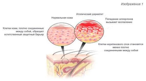 Пищевая аллергия и атопический дерматит