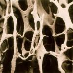 Детский остеопороз: ситуация под контролем