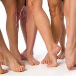 Варикозное расширение вен – женская болезнь