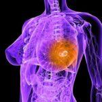 Лечение рака молочной железы в израильских клиниках