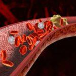 Как снизить риск тромбоза?