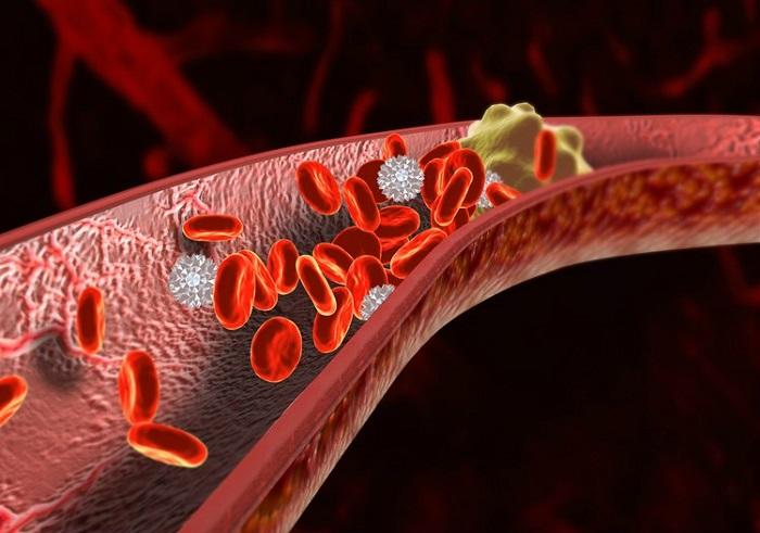 Как снизить риск тромбоза