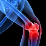 Как избавиться от боли в колене?